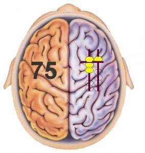 Phát Triển Não Trái Não Phải - Với Việc Học Toán Soroban
